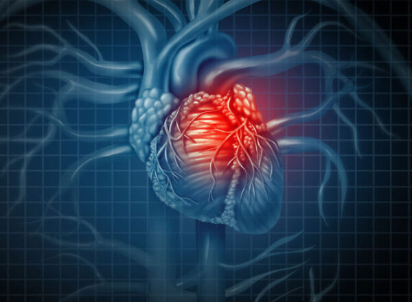 Heart pump devices associated with serious complications in some patients shortly after heart stent procedure
